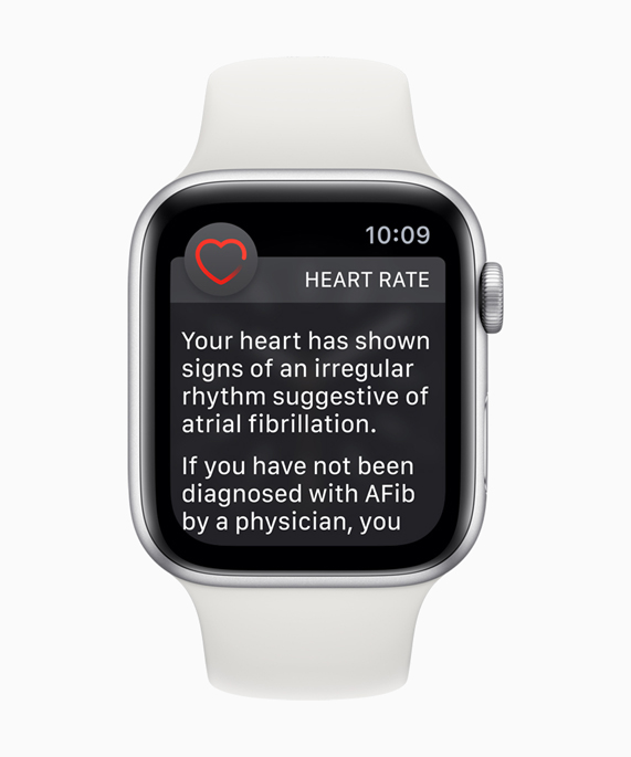 Apple Watch face with irregular heart rhythm notification.